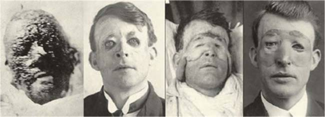 During World War II he worked with the British government to establish plastic surgery units across the country.