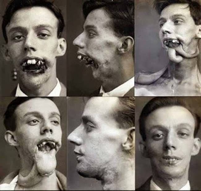 Following the end of the second World War Gillies ran a private practice and trained many doctors in the techniques of plastic surgery.