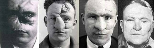 Many consider Gillies to be the father of plastic surgery. Many of the techniques he and his team developed were used for many years. In 1930 he was knighted for his work.